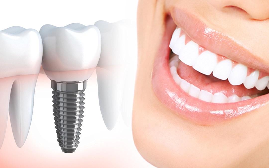 implanty-dlya-zhenschin.jpg